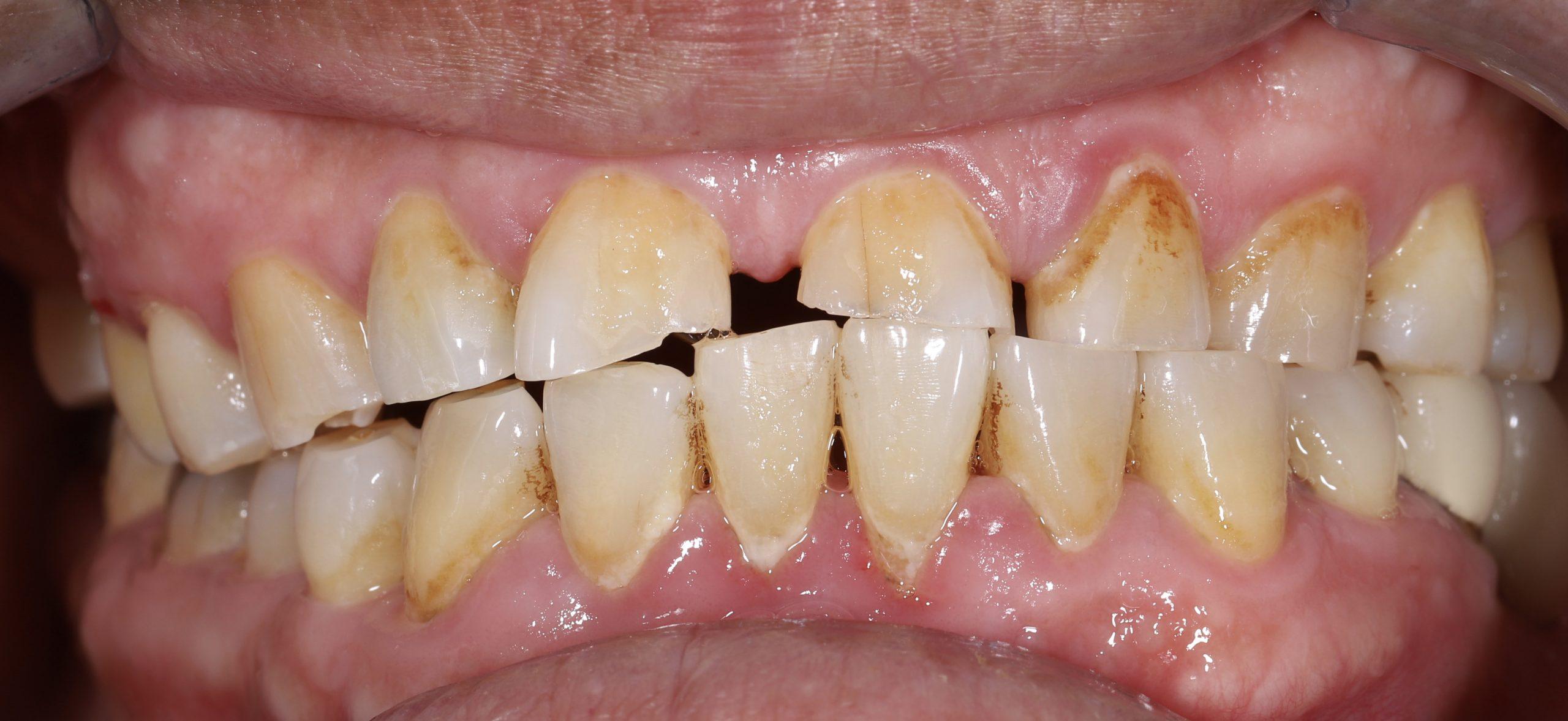 牙齒磨耗 牙齒變色 牙齒美白 全口重建