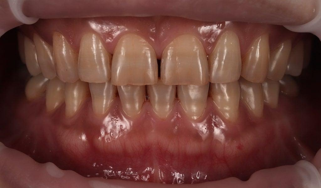 牙齒變色 牙齒美白 四環黴素染色