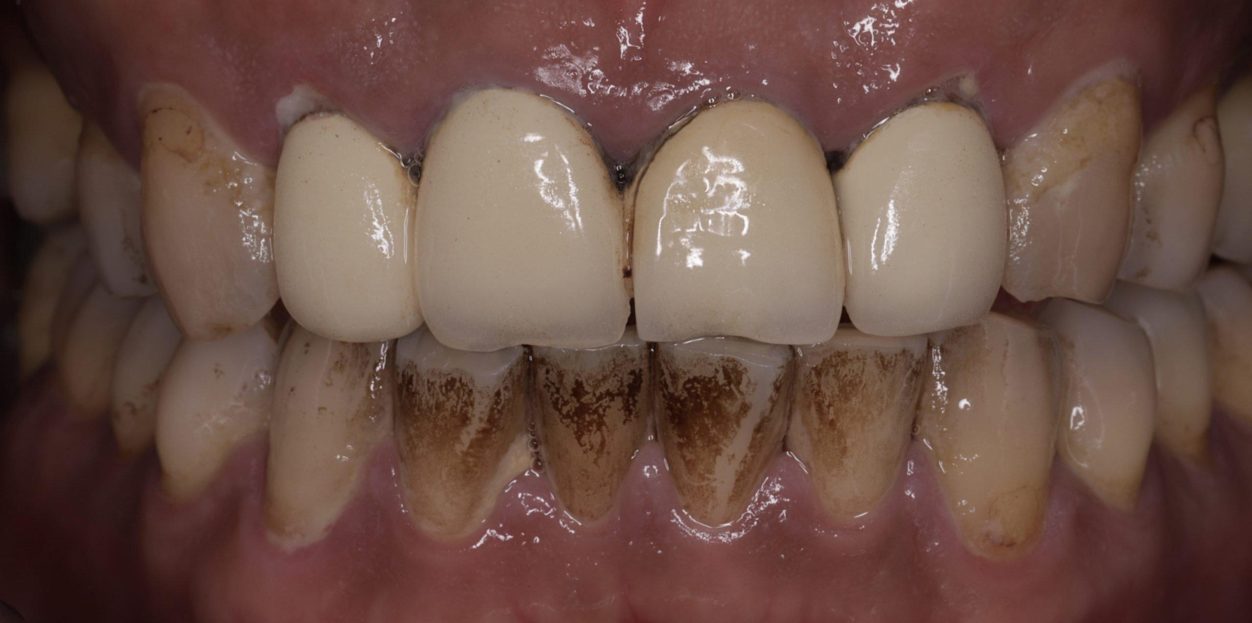 牙齒美白 牙齒染色