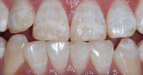 牙齒變色 牙齒美白 氟斑齒